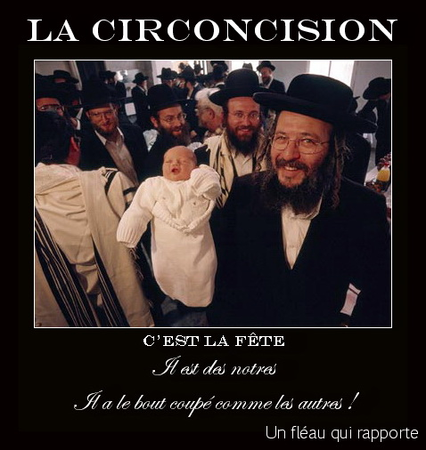 circumcision-jewish.jpg