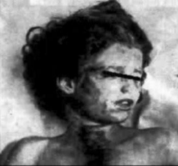 mary-phagan-autopsy-photo-1913.jpg